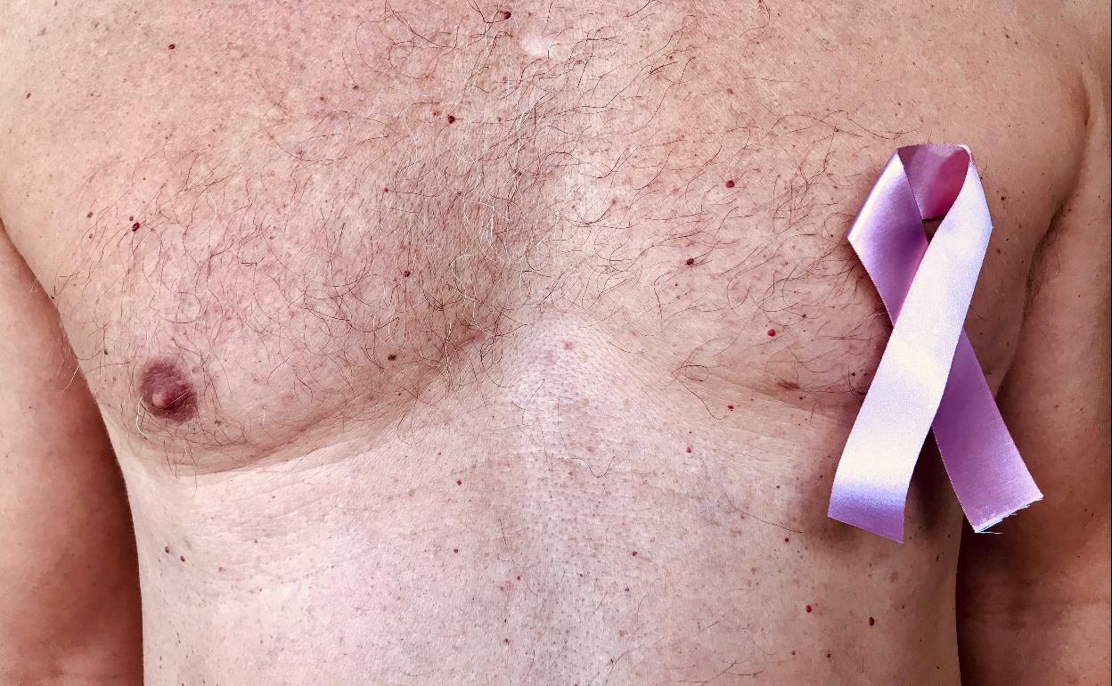 sintomas de cancer en el pecho en hombres